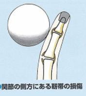 PIP靭帯損傷