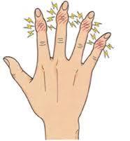 手指変形性関節症